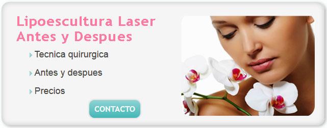 lipolaser, liposuccion laser precios, lipotransferencia glutea, lipoescultura laser precios, lipoescultura laser antes y despues, liposuccion laser precio, lipo de brazos, lipoescultura facial