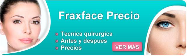 fraxface precio, fraxface, fraxface resultados, fraxface contraindicaciones, como quitar arrugas dela cara, como quitar arrugas en la cara, como evitar las arrugas dela cara,