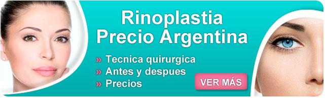 rinoplastia, rinoplastia precio argentina, rinoplastia argentina, rinoplastia recuperacion, cuanto cuesta una rinoplastia, rinoplastia hombres, rinoplastía, rinoplastia costo