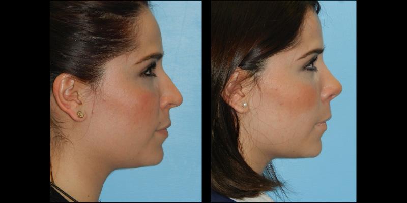 rinoplastia antes y despues, cirugia de nariz ventajas